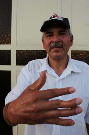 """Sérgio Alfonso perdeu o movimento dos três dedos: """"equipamentos estavam gastos e sem manutenção"""""""